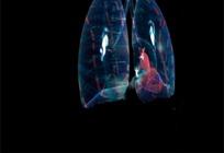 肺部背景片头视频素材